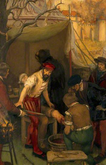 Ambroise Paré au siège de Damvillers (1552,  tableau d'Ernest Board (vers 1912). Welcome Library.